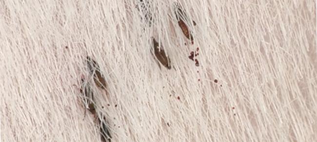 Flea infestation humans